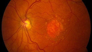 This image provided by the National Eye Institute shows a microscopic image of a retina being damaged by age-related macular degeneration. (National Eye Institute via AP)