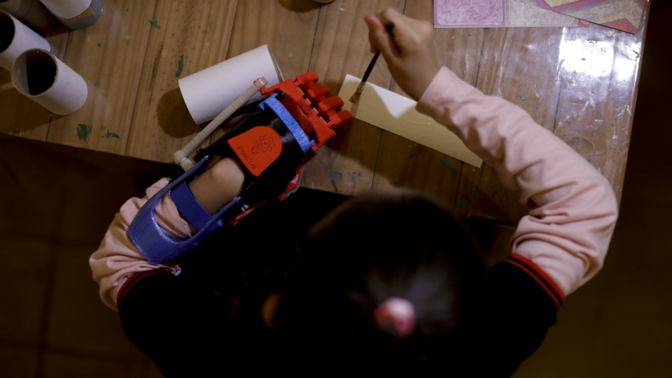 Inventor, 21, creates low-cost prosthetics to help Argentinian children