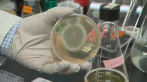 Dr. David Sheppard, director of infectious diseases at the MUHC, demonstrates what a biofilm looks like. (CTV Montreal)