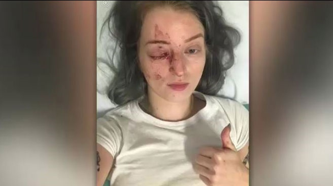 Brittney Thomas-Ljungberg was punched in the face by a stranger in downtown Winnipeg in June.