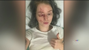 Woman speaks out after random attack in Exchange