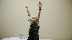 Baraka Cosmas raises his arms during a prosthetic limb fitting at Shriners Hospital for Children in Philadelphia on Tuesday, May 30, 2017. (AP / Matt Rourke)