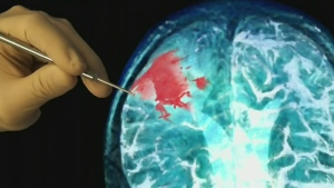 CTV Montreal: Cancer breakthrough