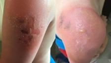 Daniel Hawkins, 12, shows a burn on his arm