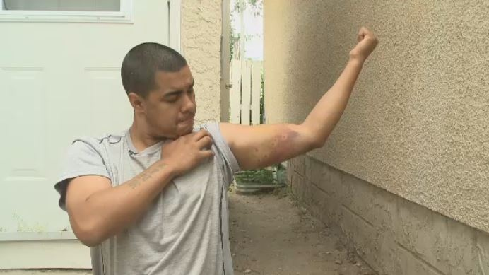Linus Kaysaywaysemat shows the injuries he sustained after he was recently bitten by a Regina police dog.
