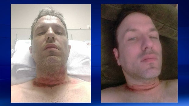 Injuries to Stelianos Psaroudakis' neck following an encounter with barbed wire on a trail in West Bragg Creek (photos: Stelianos Psaroudakis)