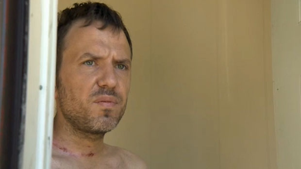 Stelianos Psaroudakis says he has been unfairly scrutinized after being injured by barbed wire in West Bragg Creek