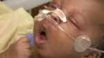 Whooping cough outbreak growing