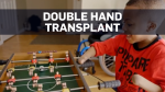 Double hand transplant