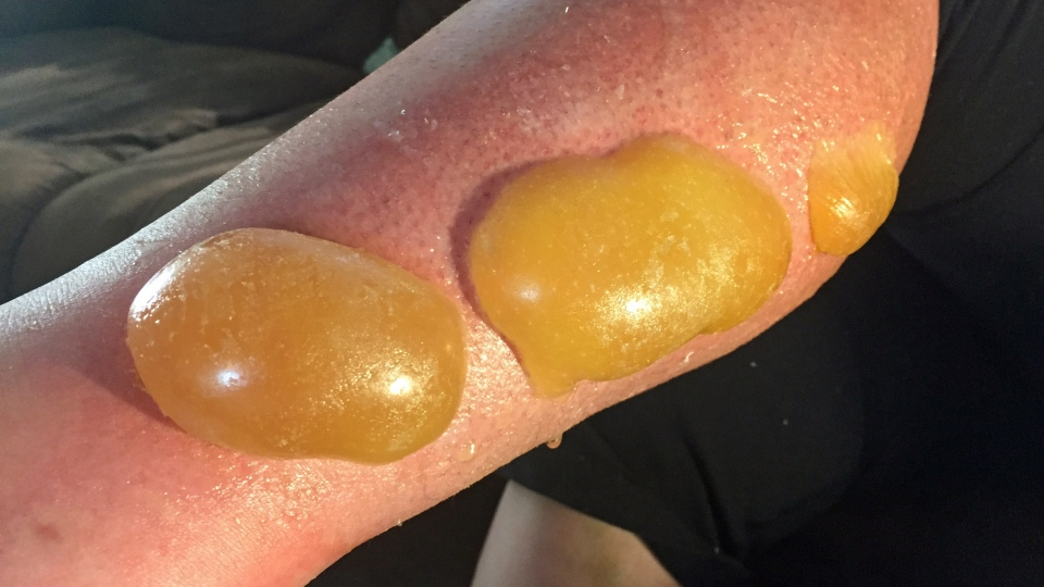 Erin Belsher claims burns and blisters on her legs were caused by Banana Boat sunscreen. (Angelina Irinici/CTV Saskatoon)