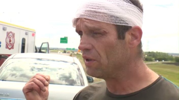 Brad Cummins said he was run over during a road rage incident on the Anthony Henday on Sunday, July 23, 2017.
