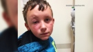 Samantha Cyr said hours after applying sunscreen to her son's face, it started to blister and cause swelling around his eye. (Source: Samantha Cyr)