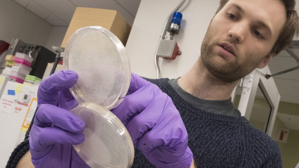 Live yeast cultures at a New York University lab