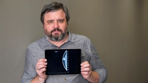 In this July 13, 2017 photo, Associated Press reporter Andrew Dalton holds an iPad displaying an image of his mammogram in downtown Los Angeles. (AP Photo/Richard Vogel)