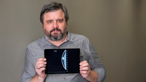 Associated Press reporter Andrew Dalton holds an iPad displaying an image of his mammogram in downtown Los Angeles on  July 13, 2017.. (AP /Richard Vogel)