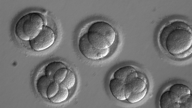 In this photo provided by Oregon Health & Science University, taken through a microscope, human embryos grow in a laboratory. (Oregon Health & Science University via AP)