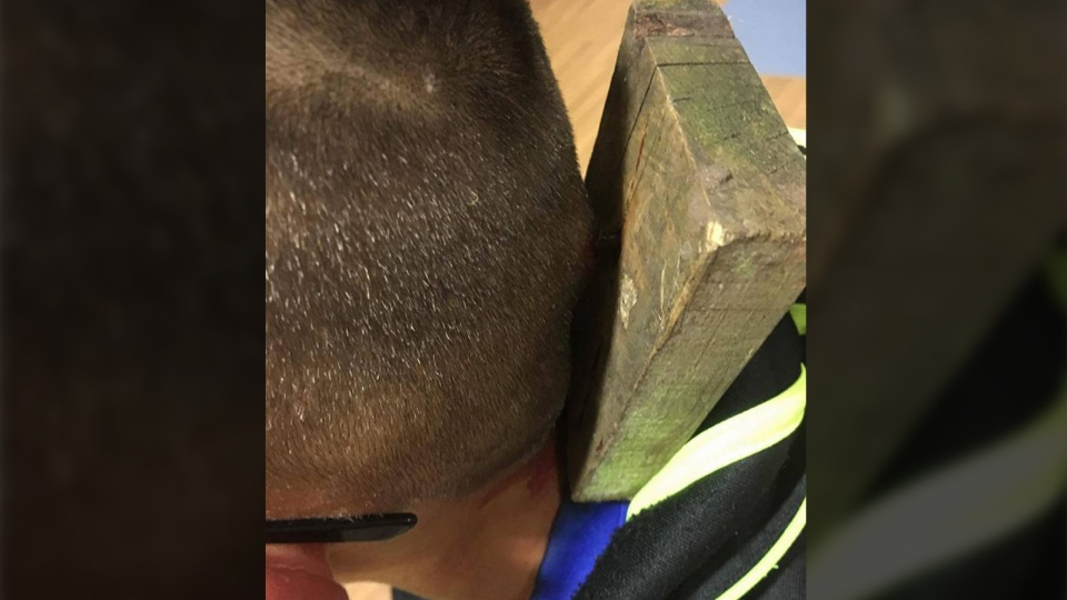 Nine-year-old bullying victim recovering from plank nailed to his ...