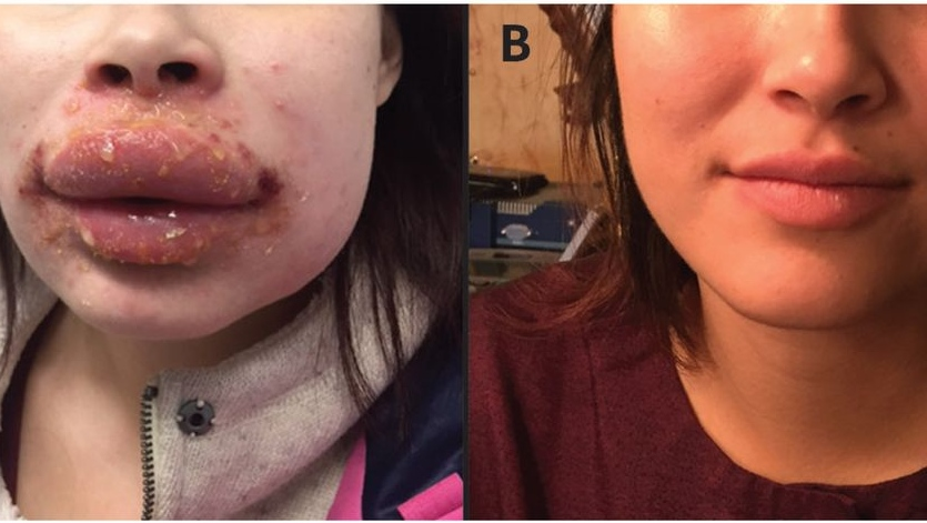 Polysporin allergy caused woman's swollen, blistered lips