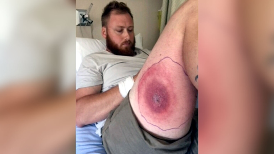 Stephen McKellar of Middle Cornwall, N.S., is recovering after being bitten by a rare spider.