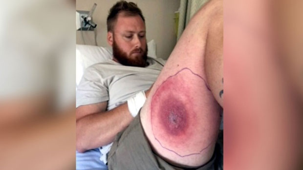 """Stephen McKellar, of Middle Cornwall, N.S., noticed last Wednesday that his leg felt tender, and saw what he described as an """"oversized mosquito bite."""""""