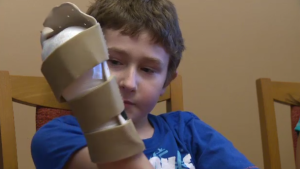 Luke Cusson, 11, is adjusting to life after losing part of his hand.