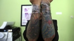 Puji Rahayu shows the tattoos on her arms prior to a laser tattoo removal treatment at a clinic in Tangerang, Indonesia on Aug. 11, 2017. (AP / Achmad Ibrahim)