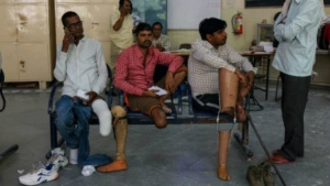 Fifty-year-old Rajkumar Saini (left), who suffered a road accident in 2004, gets his fourth prosthetic leg fixed at the Bhagwan Mahaveer Viklang Sahayata Samiti, in Jaipur, India. (AFP / Chandan Khanna)