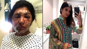 Resham Khan, shortly after the attack, and on Sept. 1 (GoFundMe.com/ Twitter/ @ReshKay_)