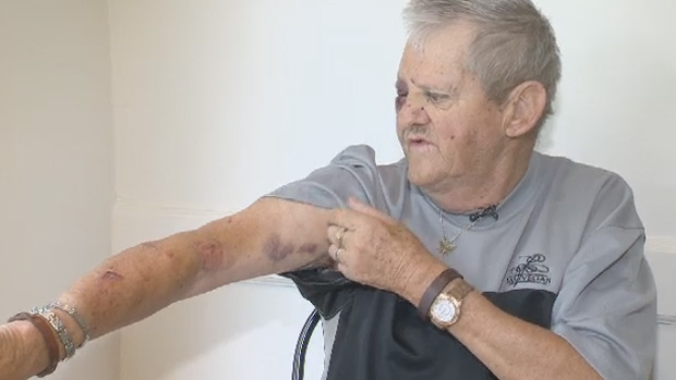 Franklin Buckler now has bruises and bite marks down his arm because of the incident.