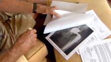 CTV National News: A widespread medical problem?