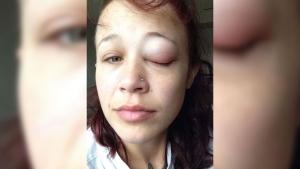 Catt Gallinger eye tattoo