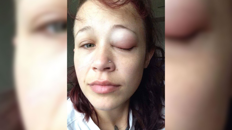 Catt Gallinger, one day after her eye tattoo procedure. (Catt Gallinger/ Facebook)