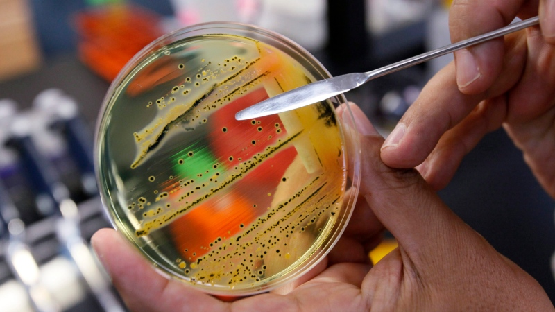 In this Monday, May 17, 2010 file photo, Dr. Mansour Samadpour points out a growth of of salmonella in a petri dish at IEH Laboratories in Lake Forest Park, Wash. (AP Photo/Elaine Thompson, file)
