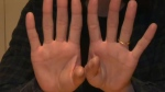 Andrea Collins' hands -designer with arthritis