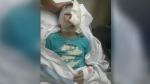 Dog attack, Justin Reid