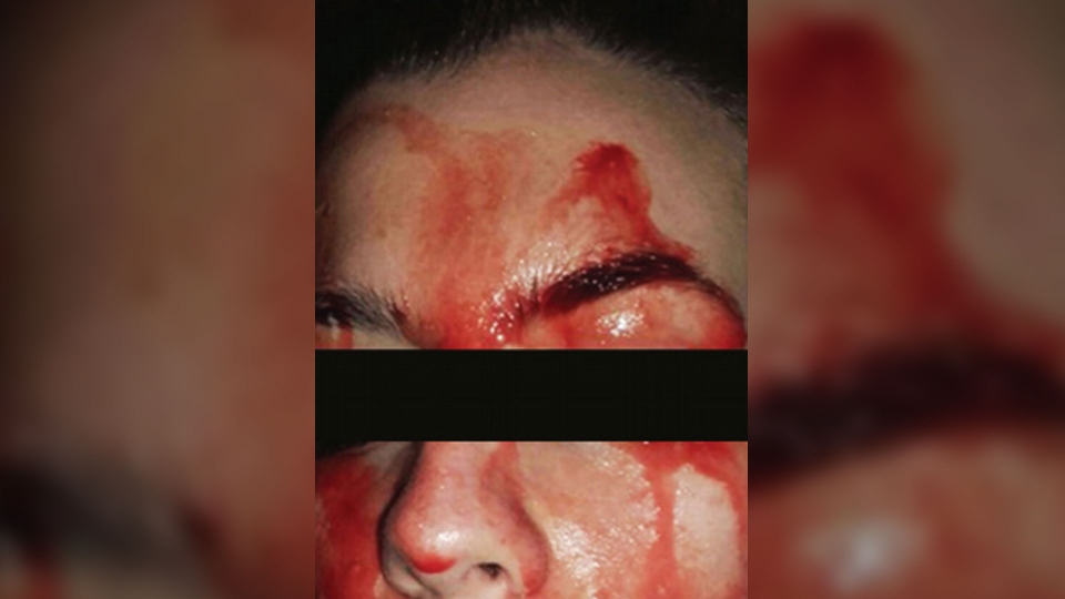 Bloody discharge from a 21-year-old woman's face is seen here. Doctors diagnosed her with hematohidrosis, a rarely reported condition that causes the patient to excrete blood through unbroken skin. (Source: CMAJ)