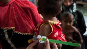 A Rohingya refugee child suffering from malnutrition gets his arm measured at the Out Patient Therapeutic ward at Action contre La Faim (ACF) center in Kutupalong, Bangladesh, Monday, Oct. 30, 2017. (AP Photo/Bernat Armangue)