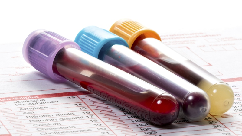 Blood samples are seen in this file photo. (Henrik Dolle/Istock.com)
