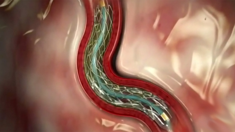 An image re-creating how a stent opens a coronary artery.