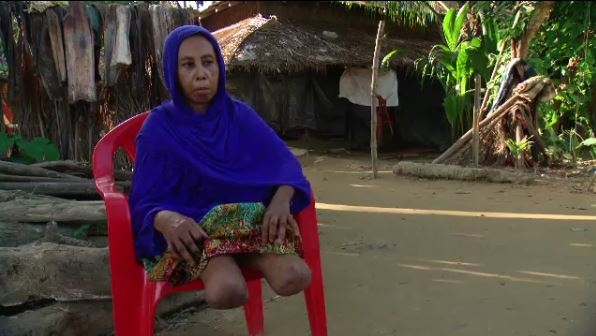 Refugee Sade Kunnahar is allowed to leave the camp in no-man's land during the day because of her medical needs. Her legs were amputated as a result of her escape from Myanmar, blown off as she crossed the border.