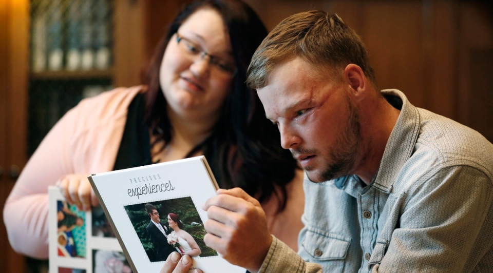 Lilly Ross, left, shows her family photos to Andy Sandness during their meeting at the Mayo Clinic, Friday, Oct. 27, 2017, in Rochester, Minn.  (AP /Charlie Neibergall)