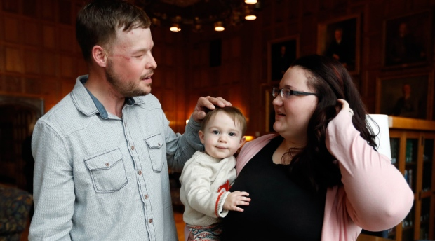 Lilly Ross holds her 17-month-old son Leonard as she talks with face transplant recipient Andy Sandness. Ross consented to the face transplant from her husband, despite her hesitation about someday seeing Rudy's face on a stranger. Eight months pregnant at the time, she said one reason to go forward was that she wanted the couple's child to one day understand what his father did to help others. (AP /Charlie Neibergall)