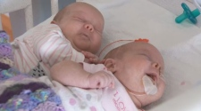 Evelyn and Chloe were born slightly premature.