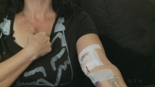 Funding cut affects woman with Lyme disease