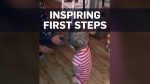 Toddler with no limbs walks for the first time