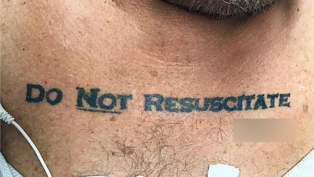 patient's DNR tattoo