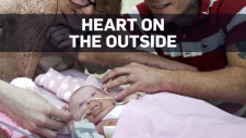Infant survives complex heart surgeries