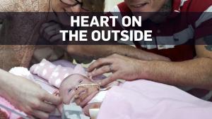 Infant survives complex heart surgeries