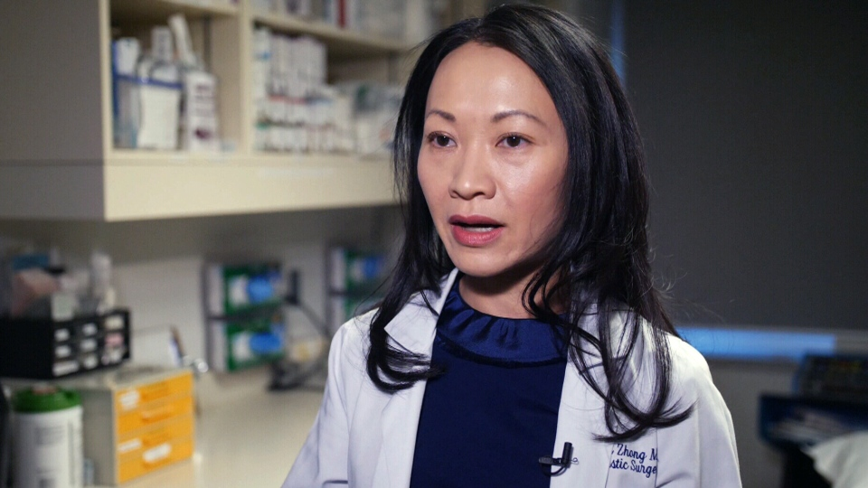 Dr. Toni Zhong, a reconstructive surgeon at Toronto's University Health Network, speaks to CTV News.