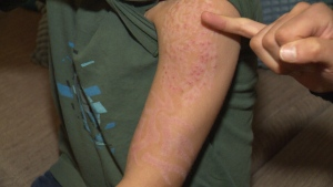 Red, splotchy scars remain after 7-year-old Cole Hunter's black henna tattoo faded. (CTV)